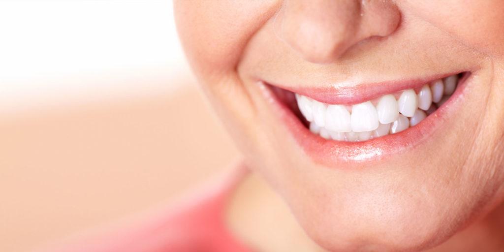 dental patient smiling after implants procedure