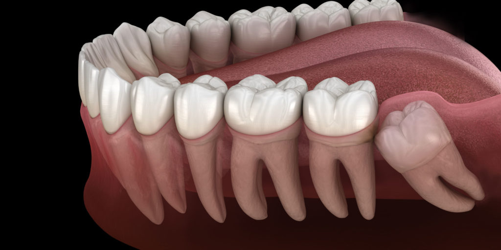 impacted wisdom tooth model